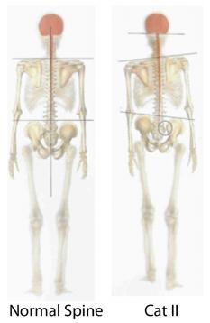 Category-II-Sacroiliac-Sprain